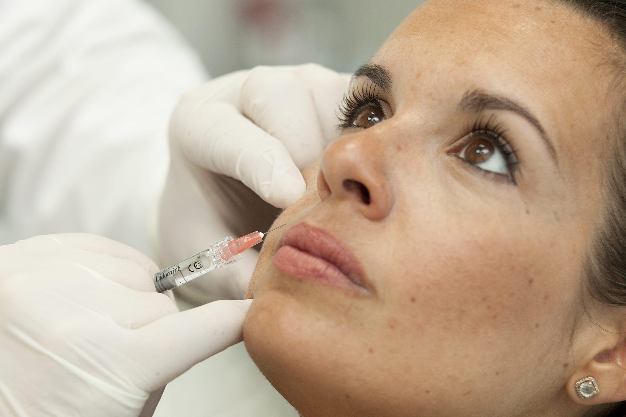 Los 8 errores más comunes tras el relleno de labios